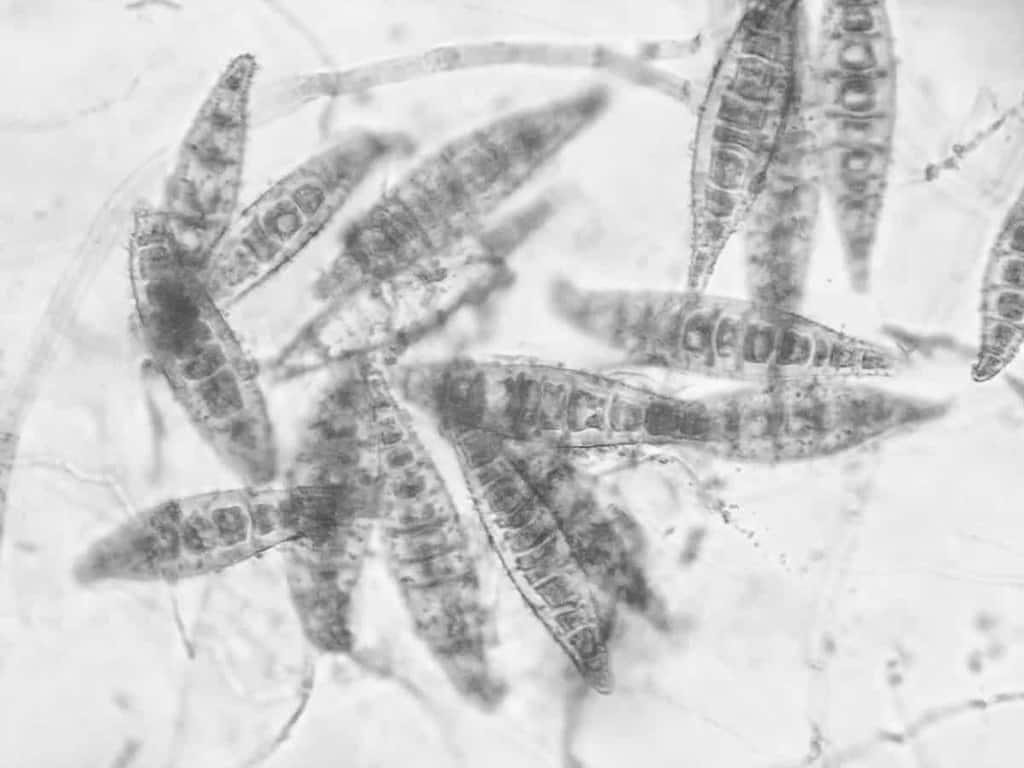 Zarodniki grzyba microsporum canis