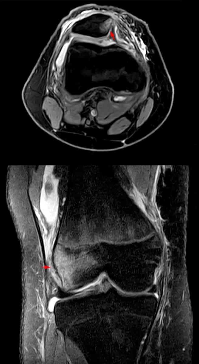 Patella-Luxation-rezonans-magnetyczny
