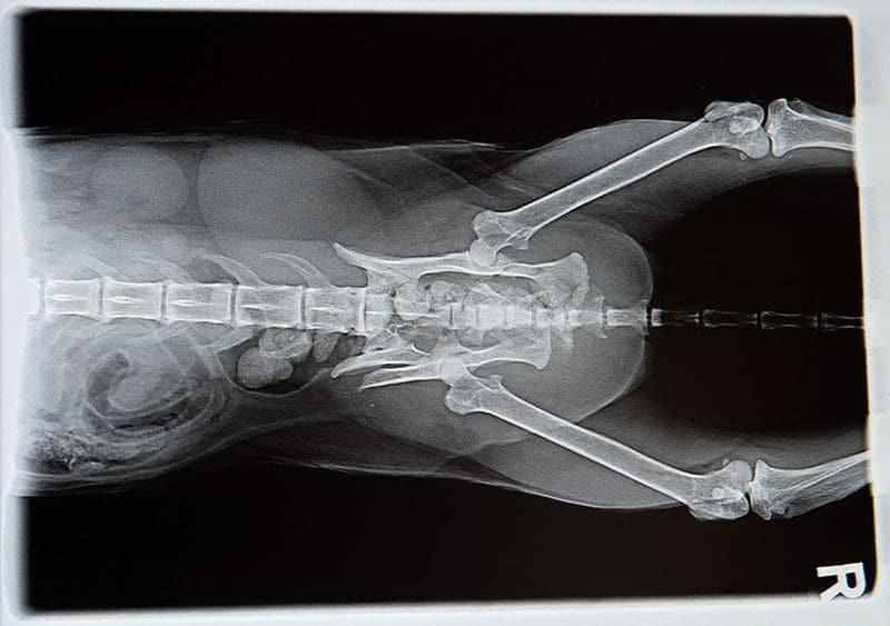 Historia rentgenografii
