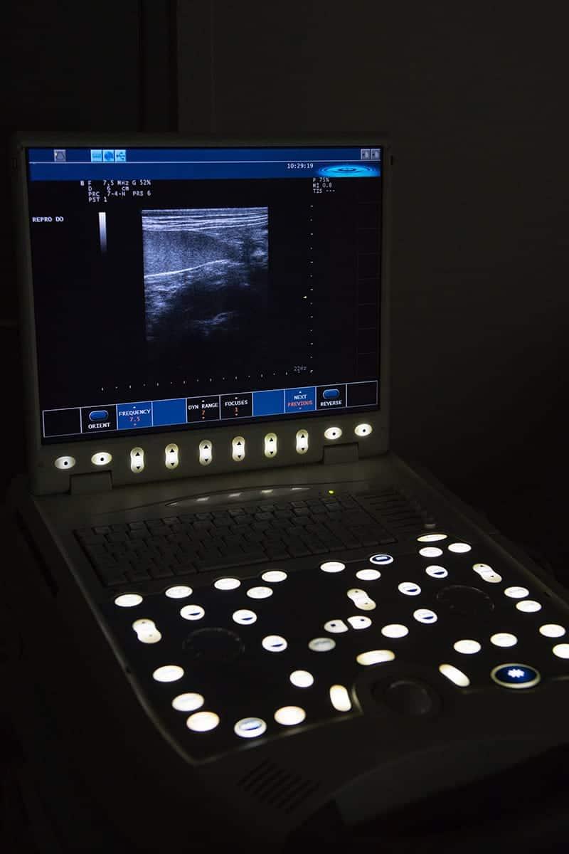 Aparat ultrasonograficzny