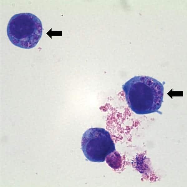Anaplasma phagocythophilum